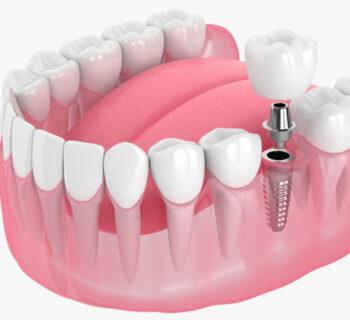 Implants in Seattle, WA